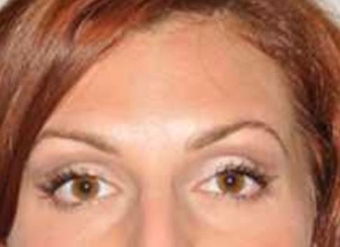 Forehead Lines Enhance Skin Clinics