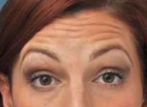 Forehead Lines Enhance Skin Clinics