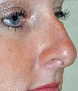 Down Turning Nose Tip Enhance Skin Clinics