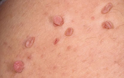 Skin Tags Enhance Skin Clinics