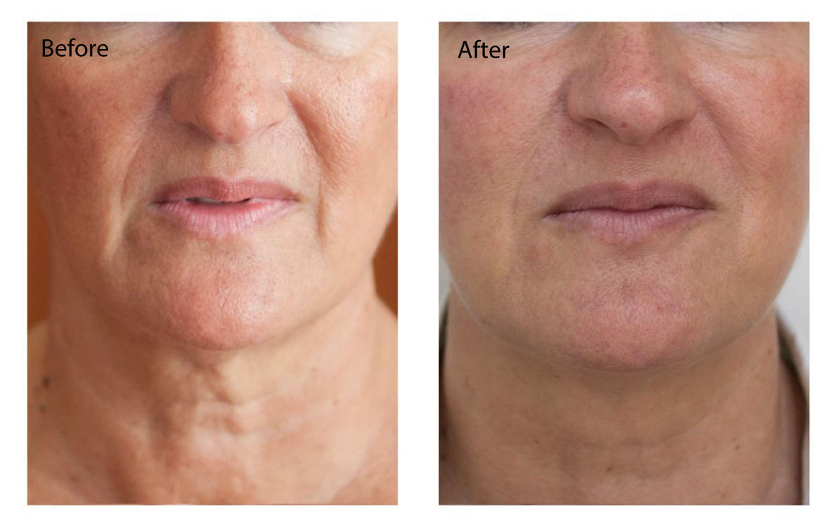 Profhilo skin remodelling for fine lines and wrinkles