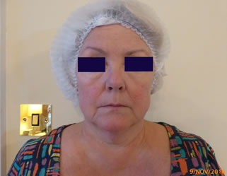 PDO Threadlift face lift jowls