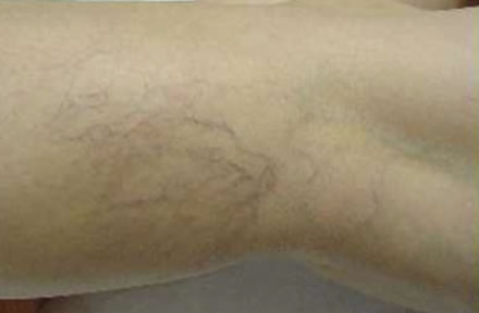 Micro-Sclerotherapy Before