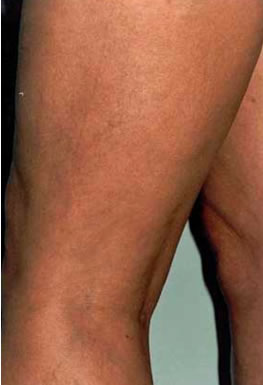 Micro-Sclerotherapy After