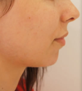 Chin Reshaping Before