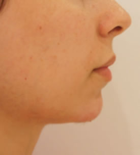 Chin Reshaping After