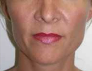 Facial Slimming After